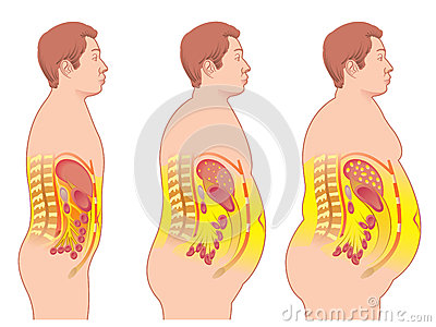 obesity-medical-illustration-consequences-31542084